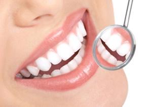 6 tipp a kevesebb fogkőért