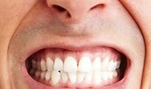Amit a fogcsikorgatásról tudni akartál
