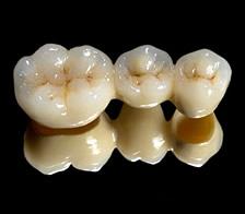 Porcelánnal leplezett fogpótlások